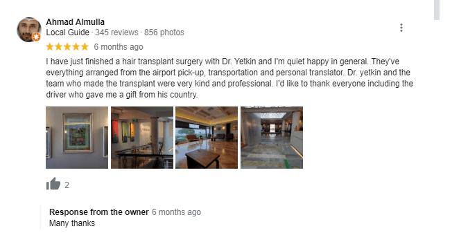 DHI Hair Transplant in Turkey 5