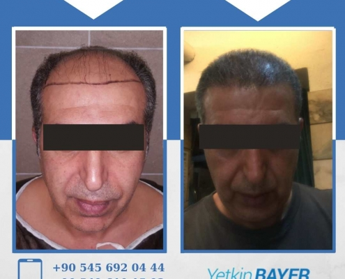 HAIR TRANSPLANT – BEFORE AND AFTER 1