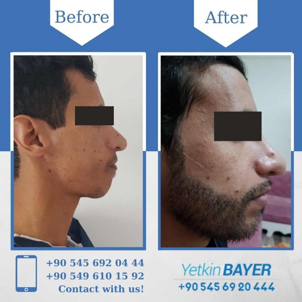 Haartransplantation in der Türkei mit der FUE-Methode 34