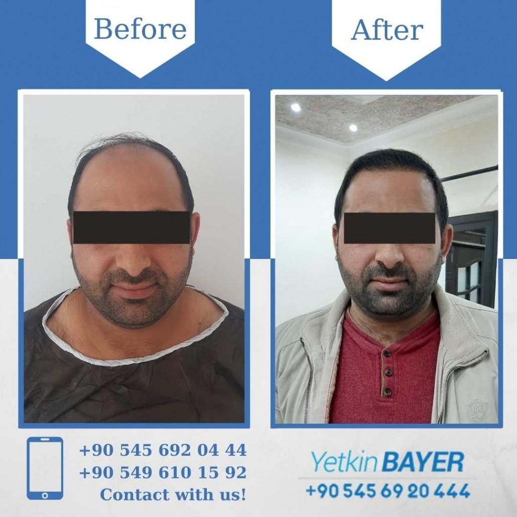 Haartransplantation in der Türkei mit der FUE-Methode 31
