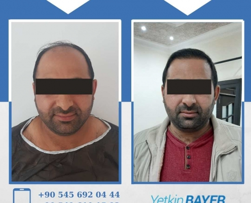 HAIR TRANSPLANT – BEFORE AND AFTER 11