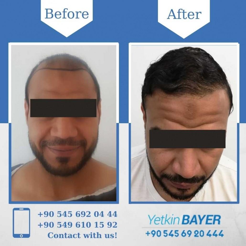 Haartransplantation in der Türkei mit der FUE-Methode 30