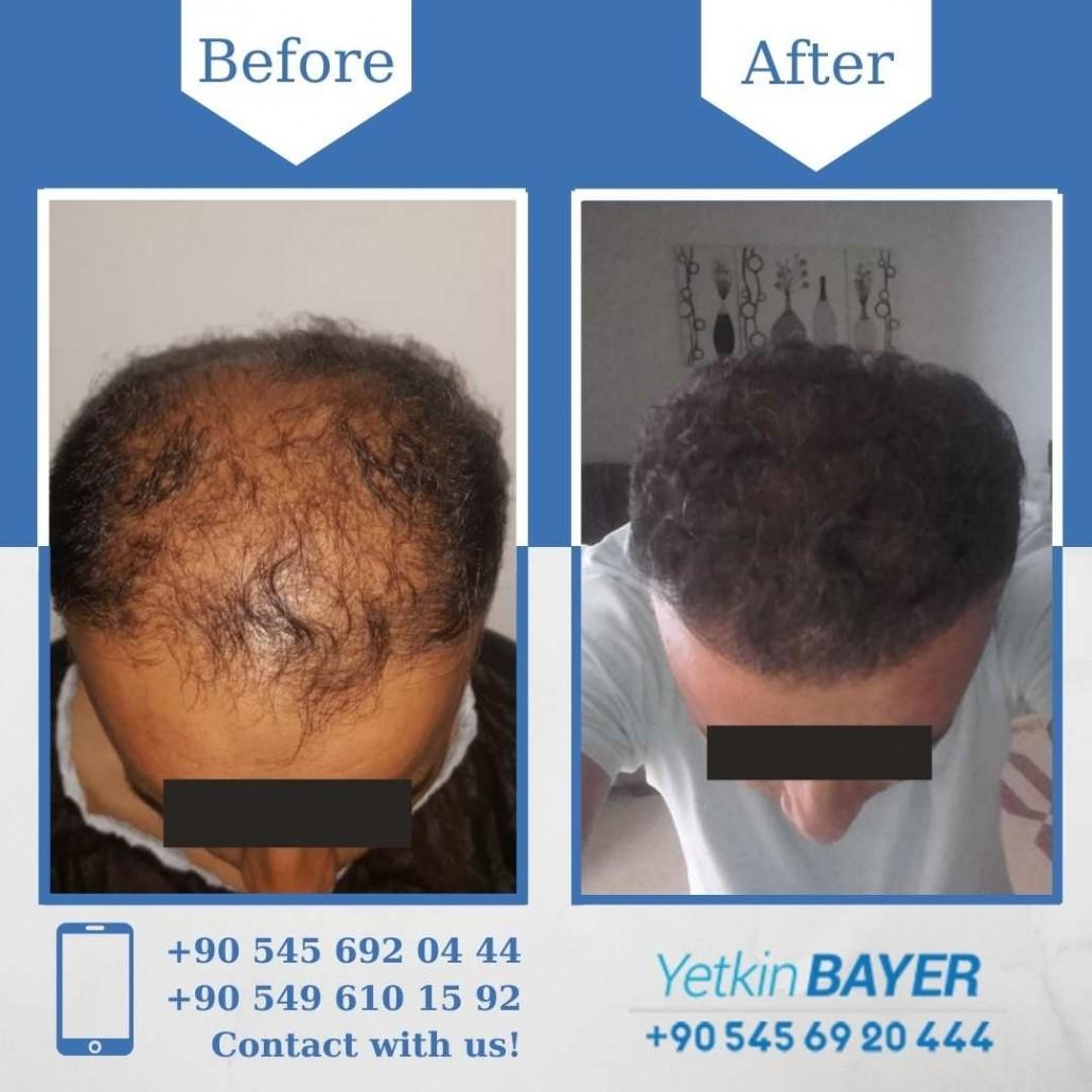 Haartransplantation in der Türkei mit der FUE-Methode 25