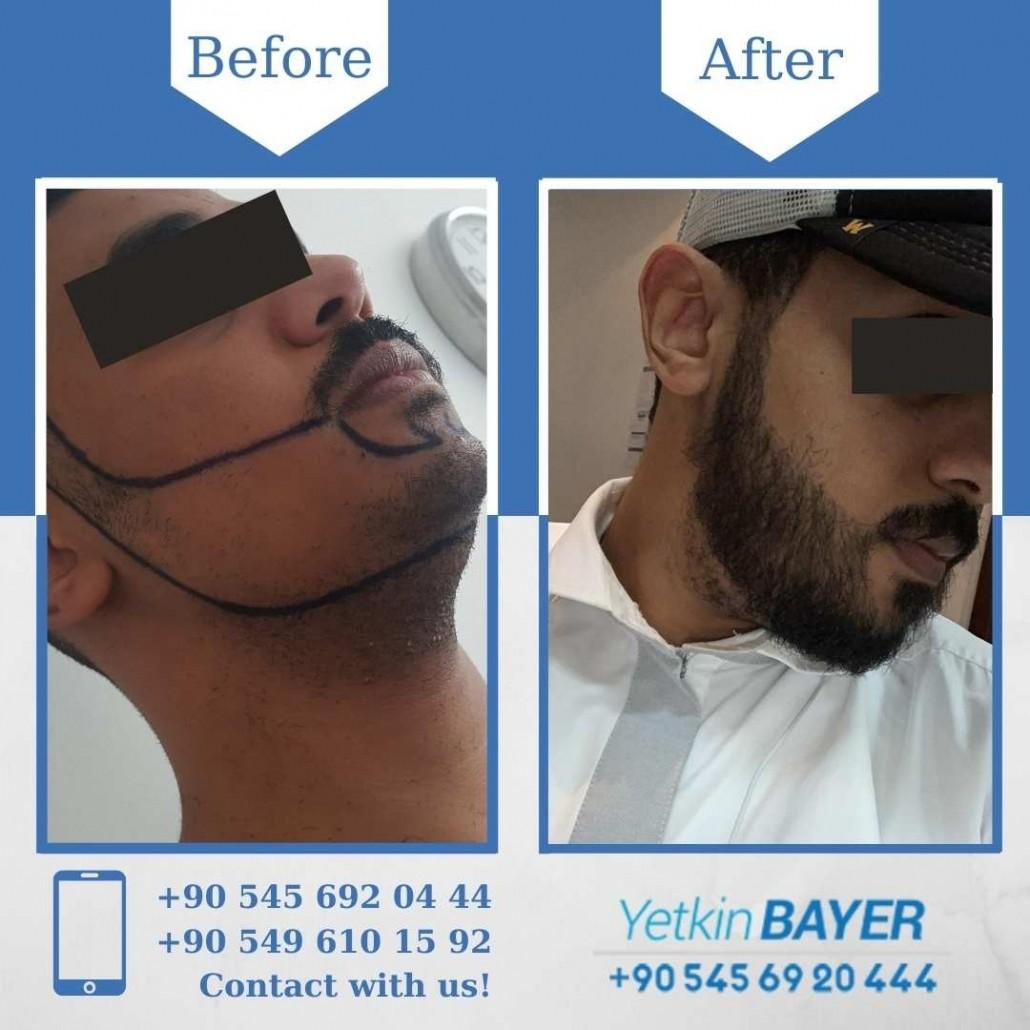 Dr. Bayer Clinics :トルコ自毛植毛 21