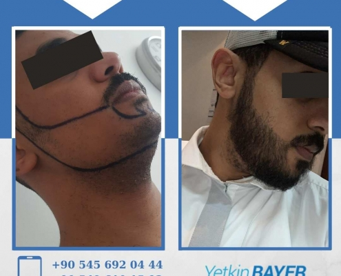 HAIR TRANSPLANT – BEFORE AND AFTER 14