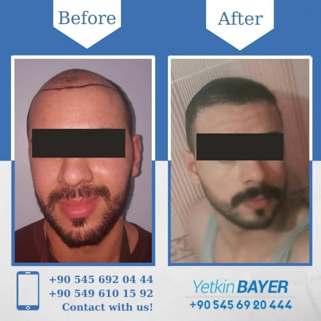 Dr. Bayer Clinics :トルコ自毛植毛 20