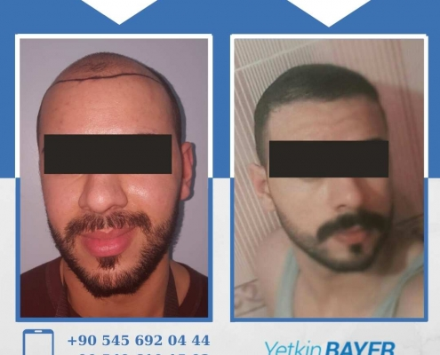 HAIR TRANSPLANT – BEFORE AND AFTER 15