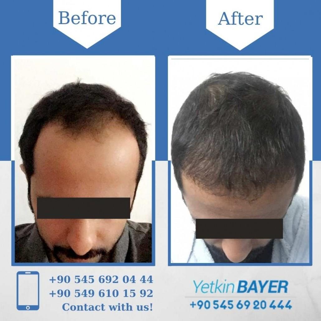 Greffe de Cheveux Turquie - Istanbul 12