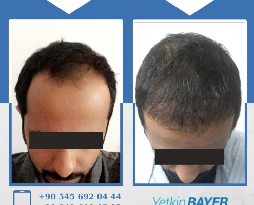 HAIR TRANSPLANT – BEFORE AND AFTER 16