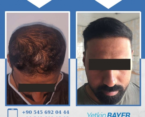 HAIR TRANSPLANT – BEFORE AND AFTER 17