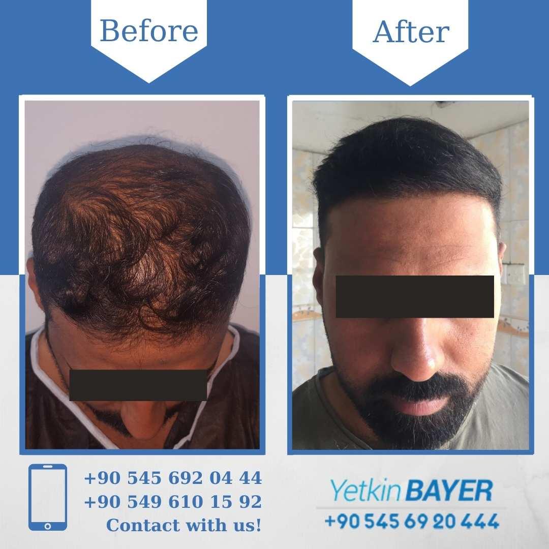 DHI Hair Transplant in Turkey 12
