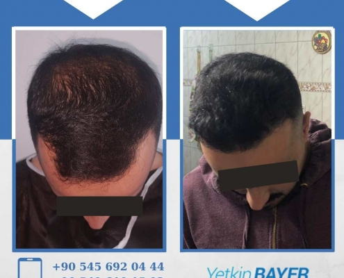 HAIR TRANSPLANT – BEFORE AND AFTER 19