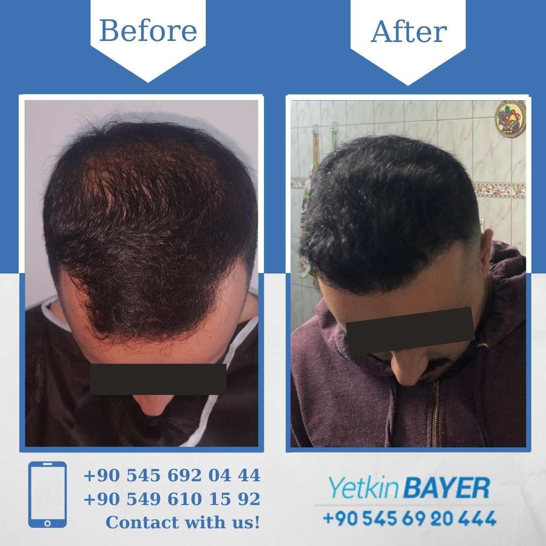 DHI Hair Transplant in Turkey 13