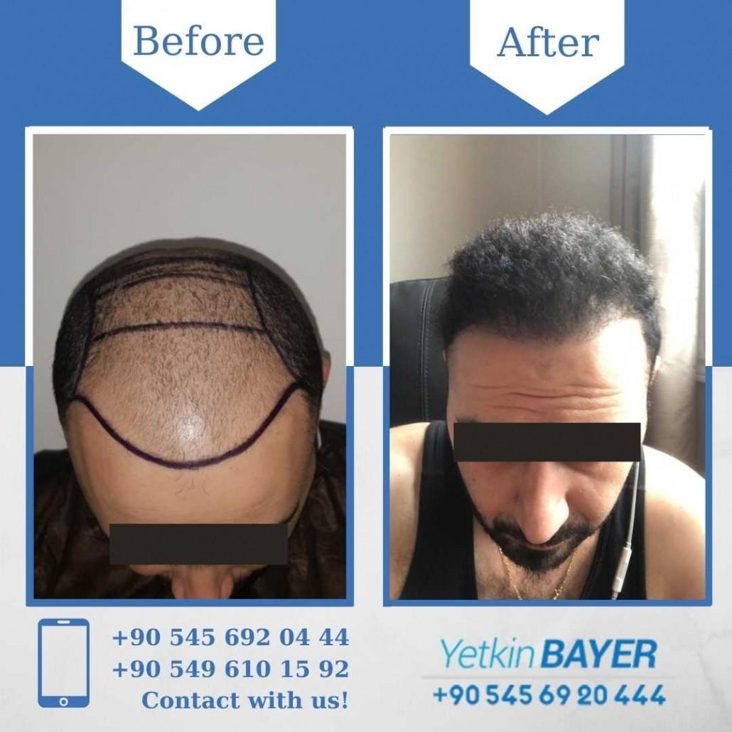 Haartransplantation in der Türkei mit der FUE-Methode 23