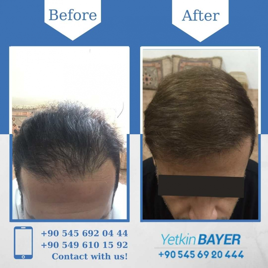 Hair Transplant in Turkey Before And After Results 13