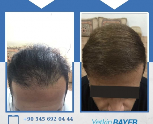 HAIR TRANSPLANT – BEFORE AND AFTER 20