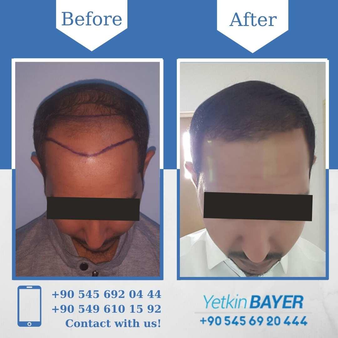 DHI Hair Transplant in Turkey 14