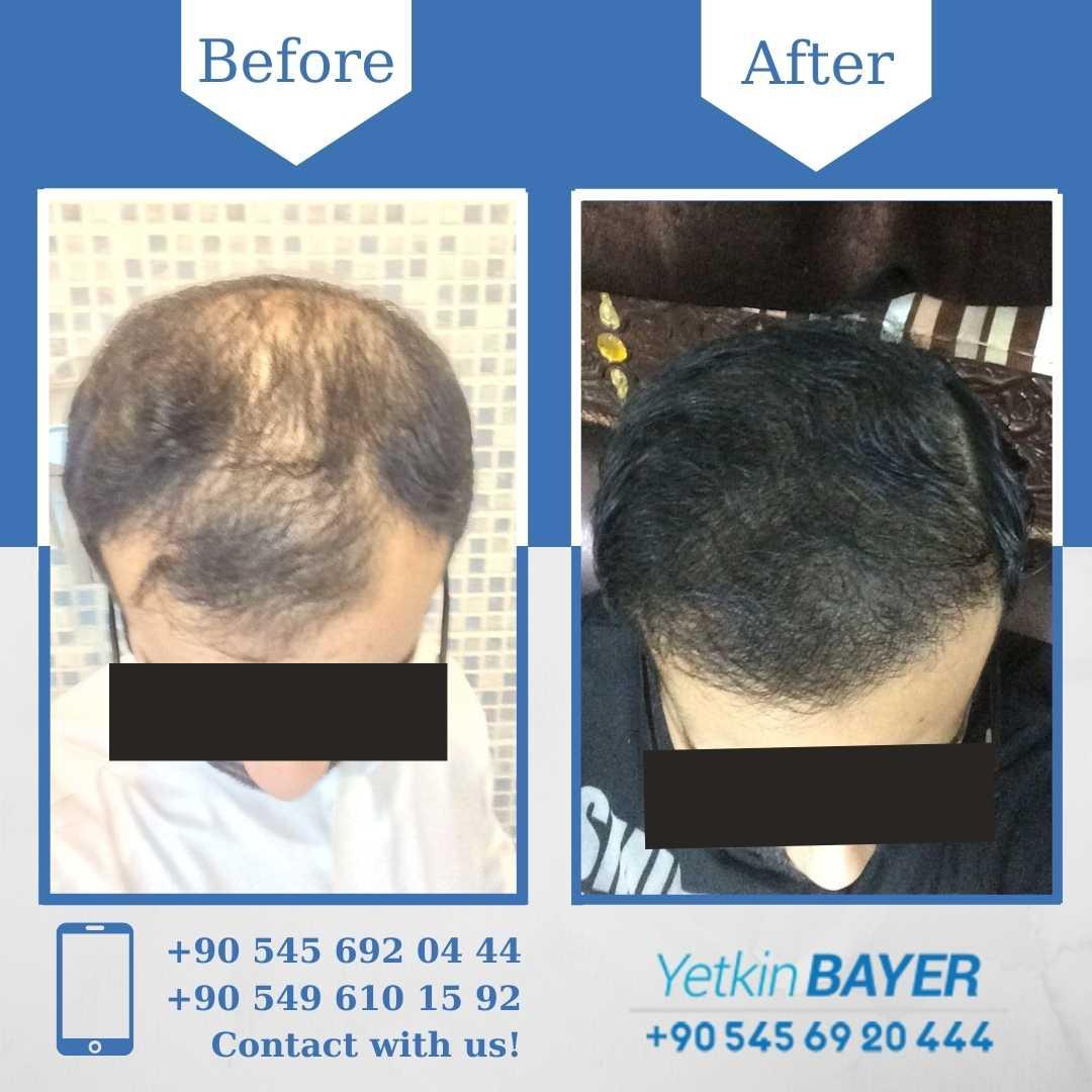 DHI Hair Transplant in Turkey 16