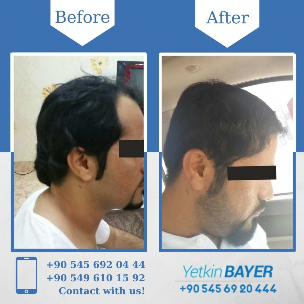Hair Transplant in Turkey Before And After Results 4