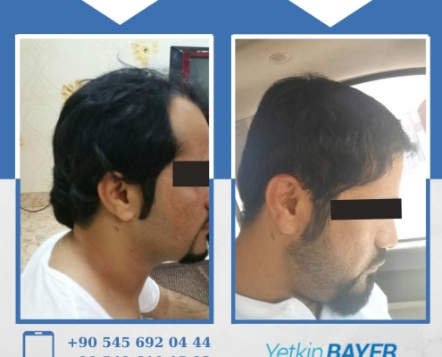 HAIR TRANSPLANT – BEFORE AND AFTER 23