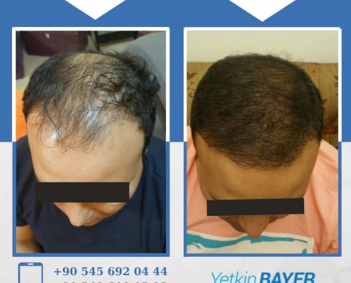 HAIR TRANSPLANT – BEFORE AND AFTER 24