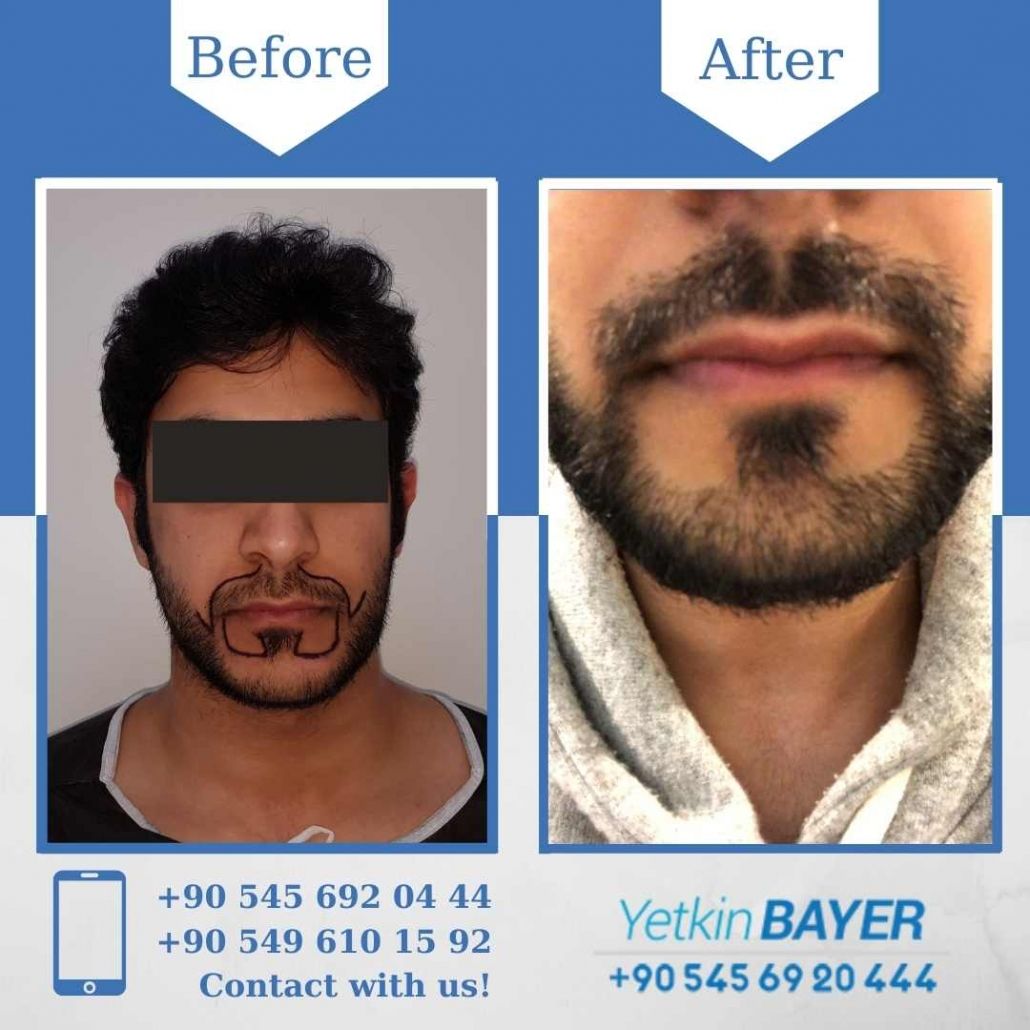 Hair Transplant in Turkey Before And After Results 6