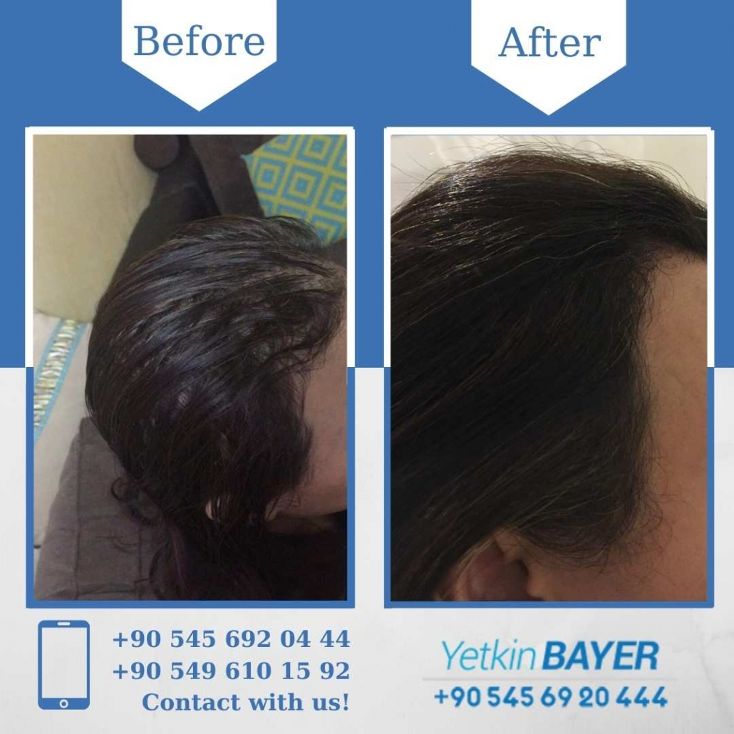 women's hair transplant before and after