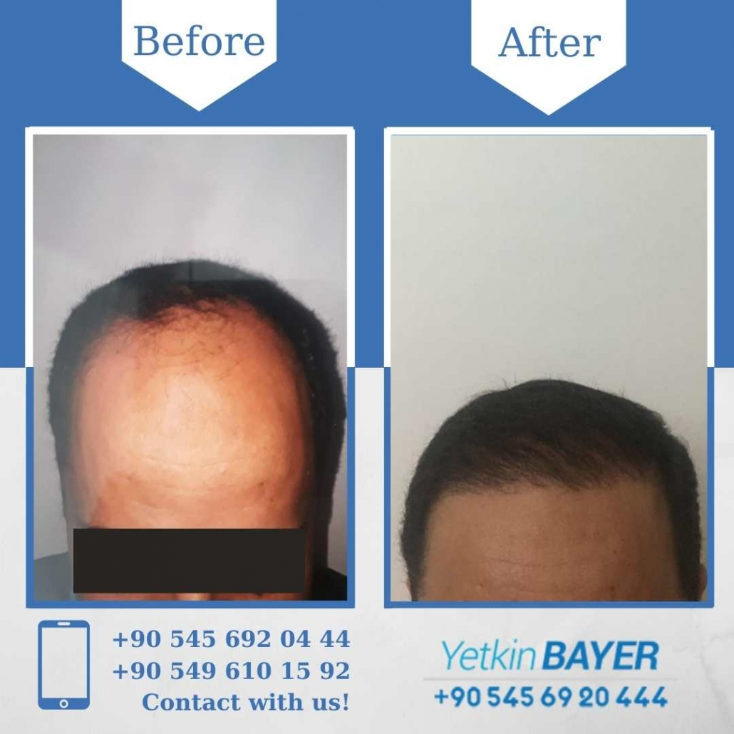 Hair Transplant in Turkey Before And After Results 7