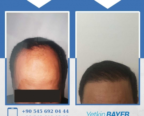 HAIR TRANSPLANT – BEFORE AND AFTER 27