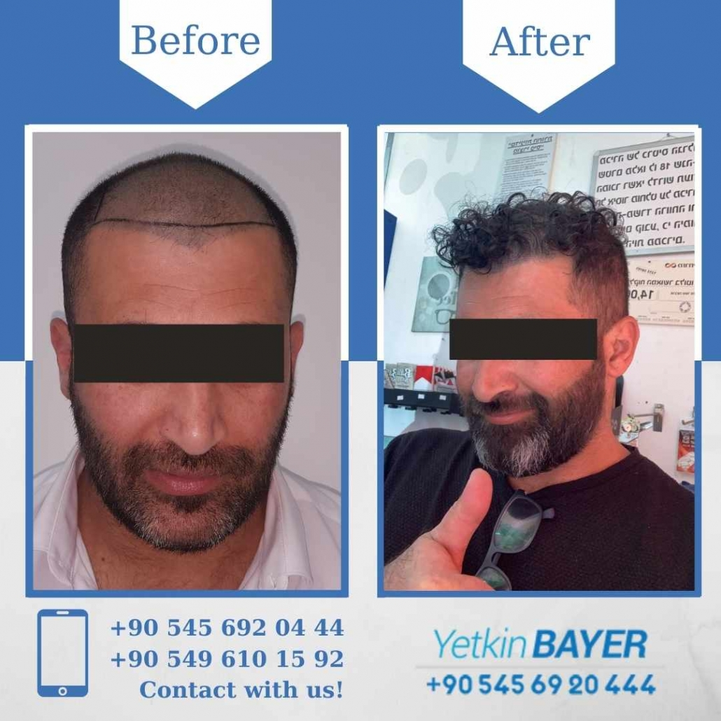 Hair Transplant in Turkey Before And After Results 8