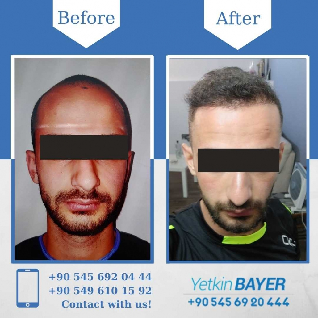 Hair Transplant in Turkey Before And After Results 9
