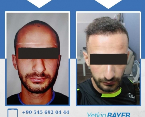 HAIR TRANSPLANT – BEFORE AND AFTER 29