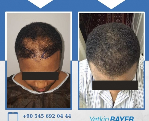 HAIR TRANSPLANT – BEFORE AND AFTER 3