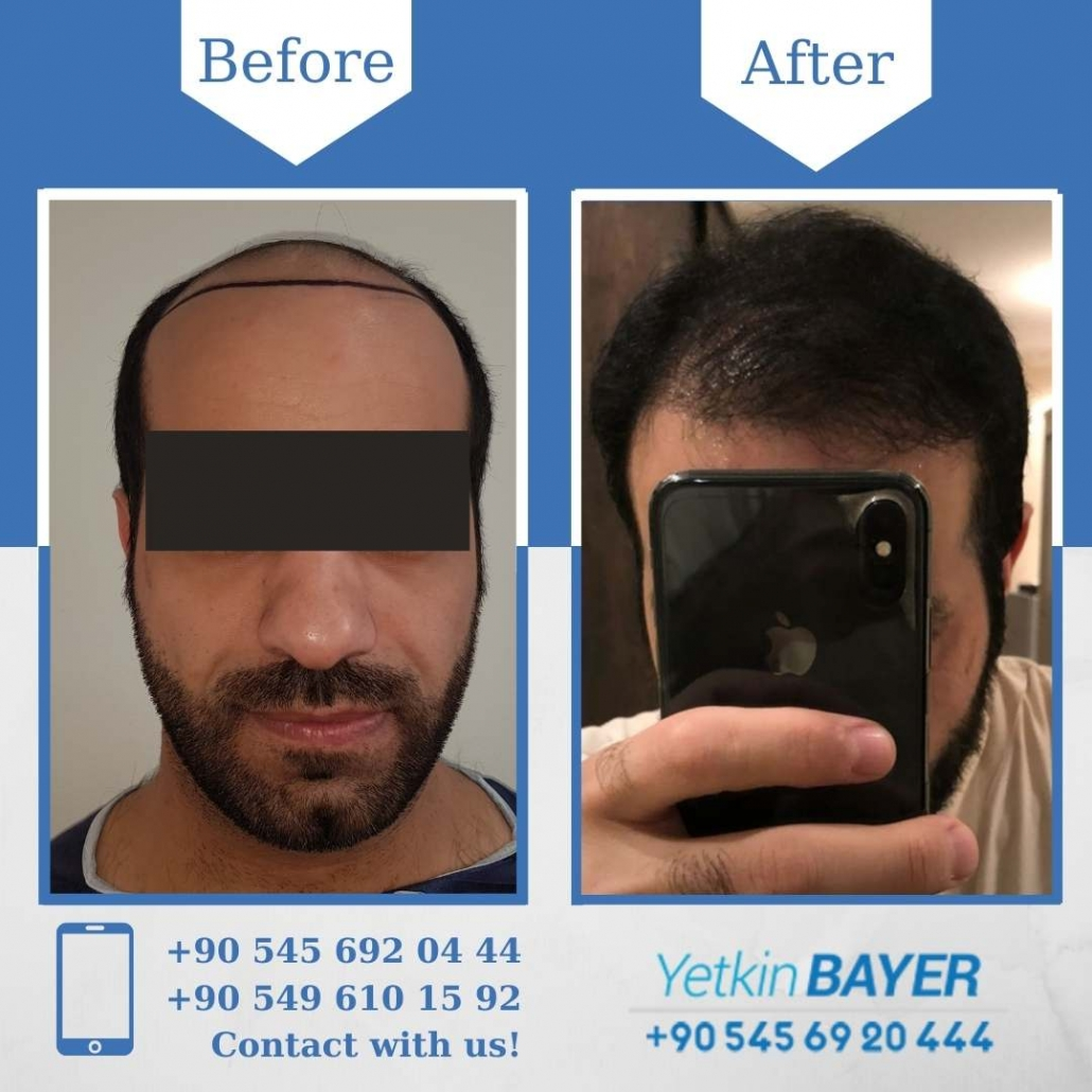Hair Transplant in Turkey Before And After Results 12