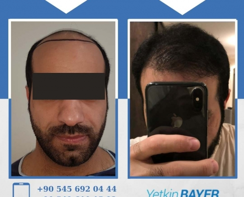 HAIR TRANSPLANT – BEFORE AND AFTER 30