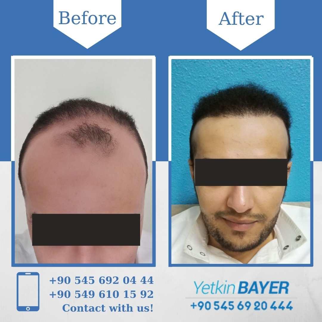 DHI Hair Transplant in Turkey 10