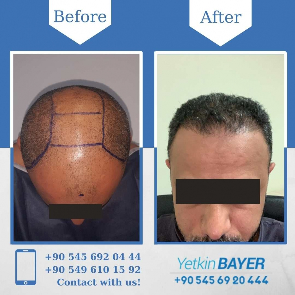 Hair Transplant in Turkey Before And After Results 11