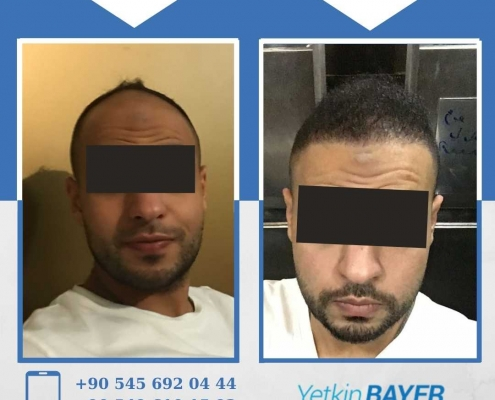 HAIR TRANSPLANT – BEFORE AND AFTER 34