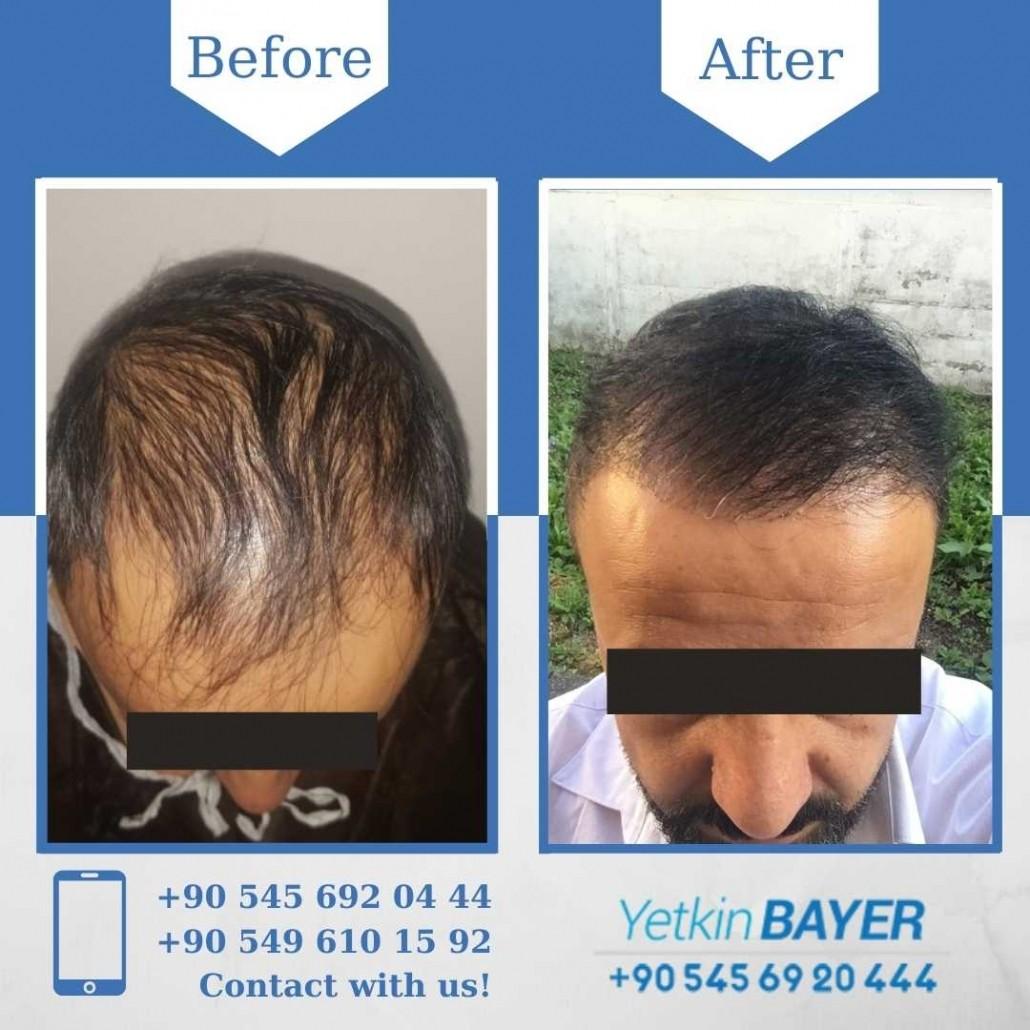 Haartransplantation in der Türkei mit der FUE-Methode 19