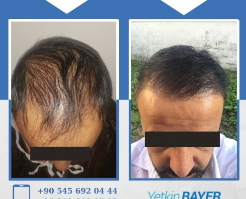 HAIR TRANSPLANT – BEFORE AND AFTER 4