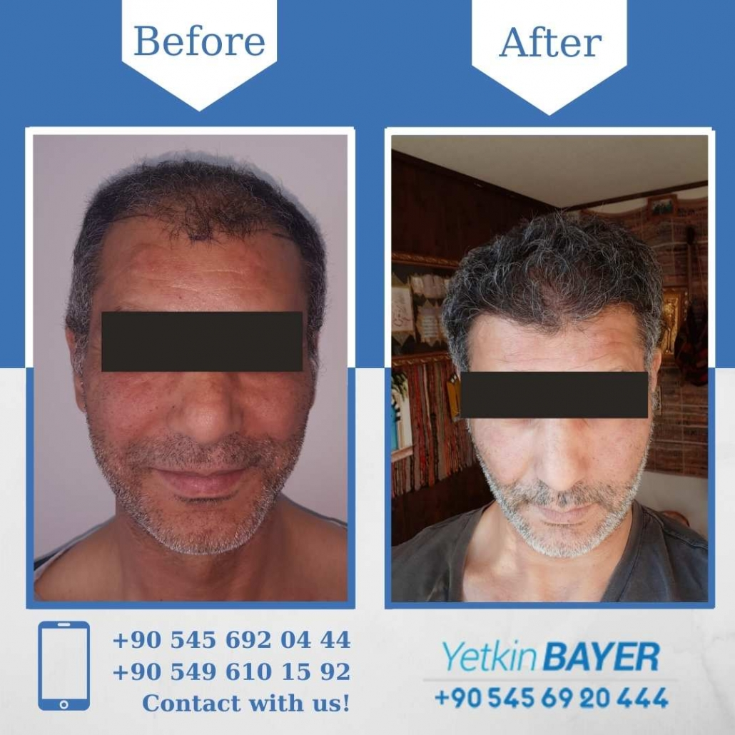 Haartransplantation in der Türkei mit der FUE-Methode 13