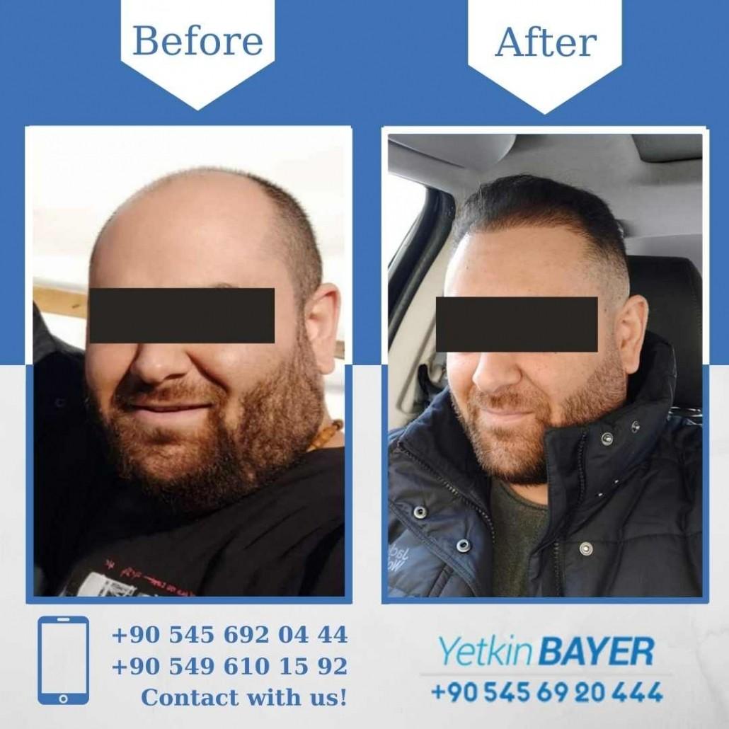 Dr. Bayer Clinics :トルコ自毛植毛 18