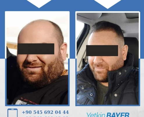 HAIR TRANSPLANT – BEFORE AND AFTER 6