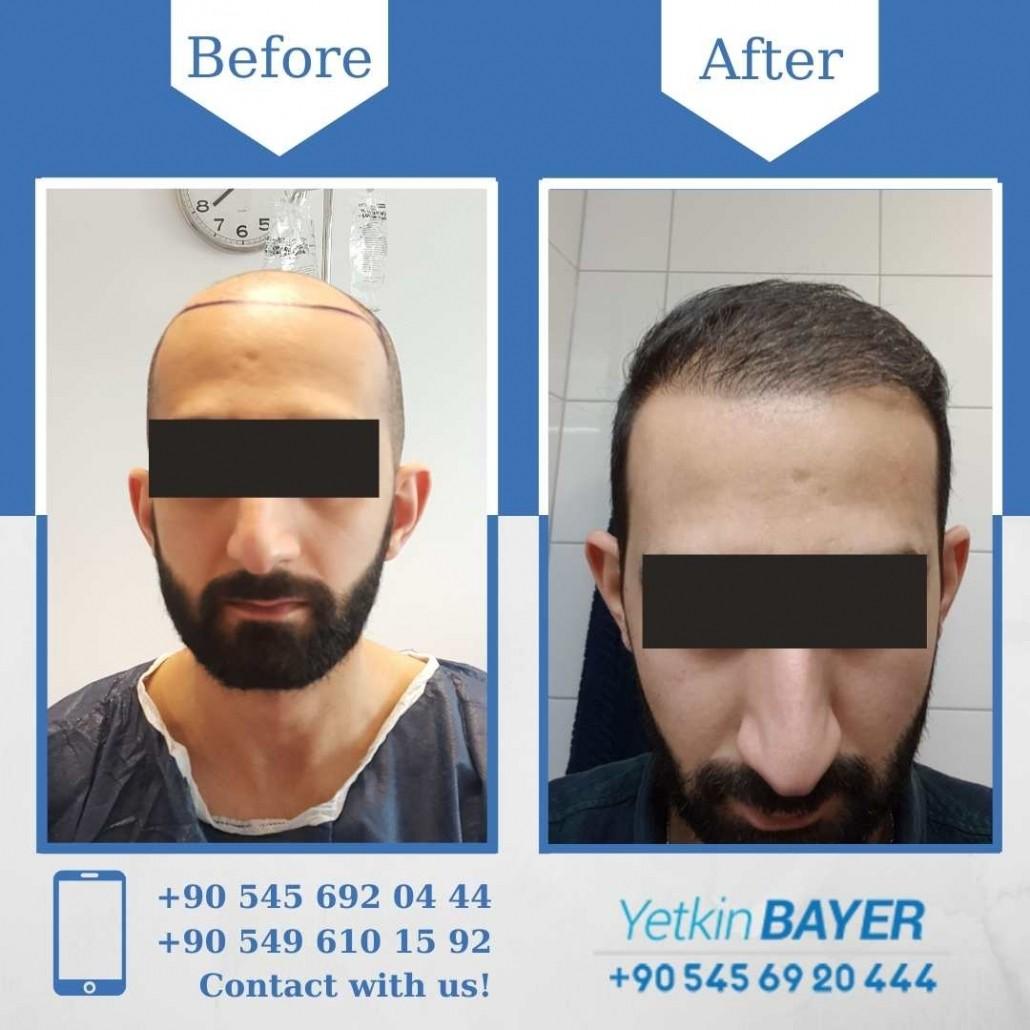 Dr. Bayer Clinics :トルコ自毛植毛 17