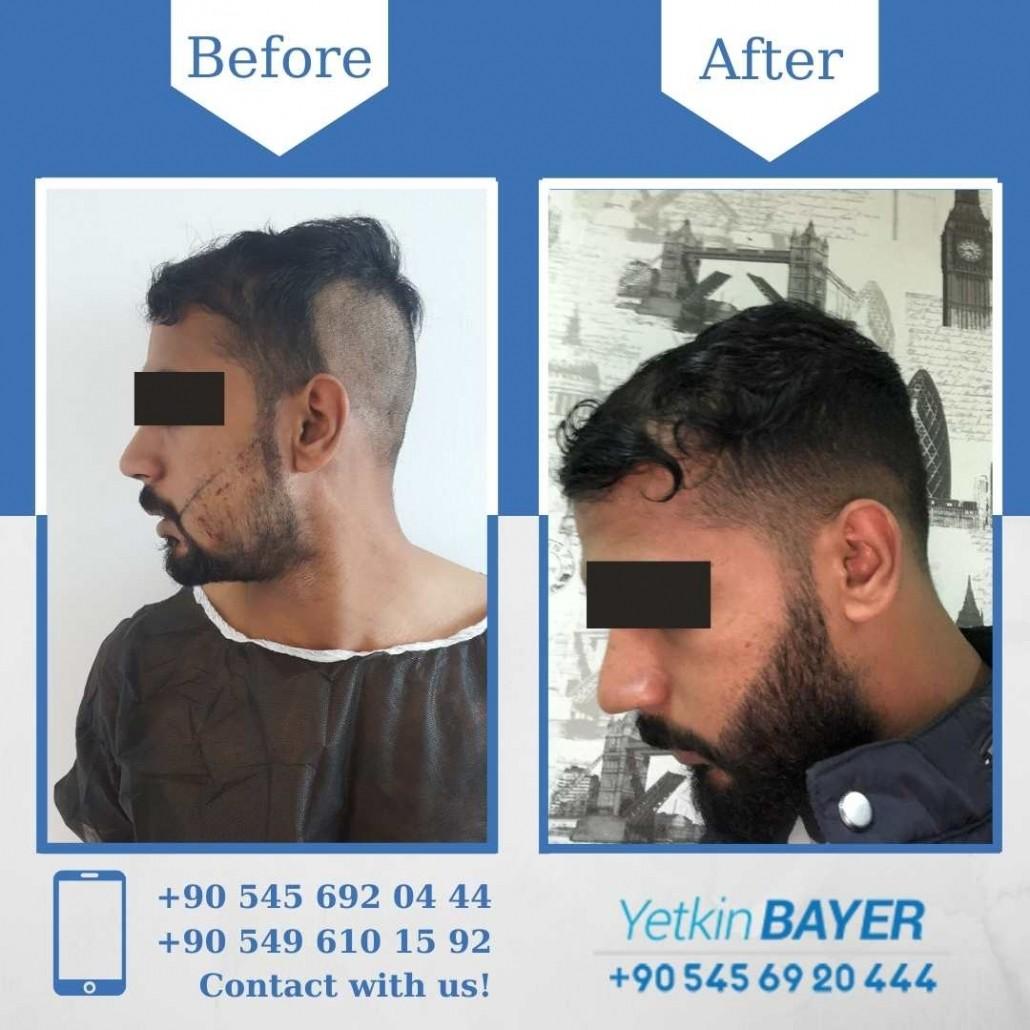 Dr. Bayer Clinics :トルコ自毛植毛 16
