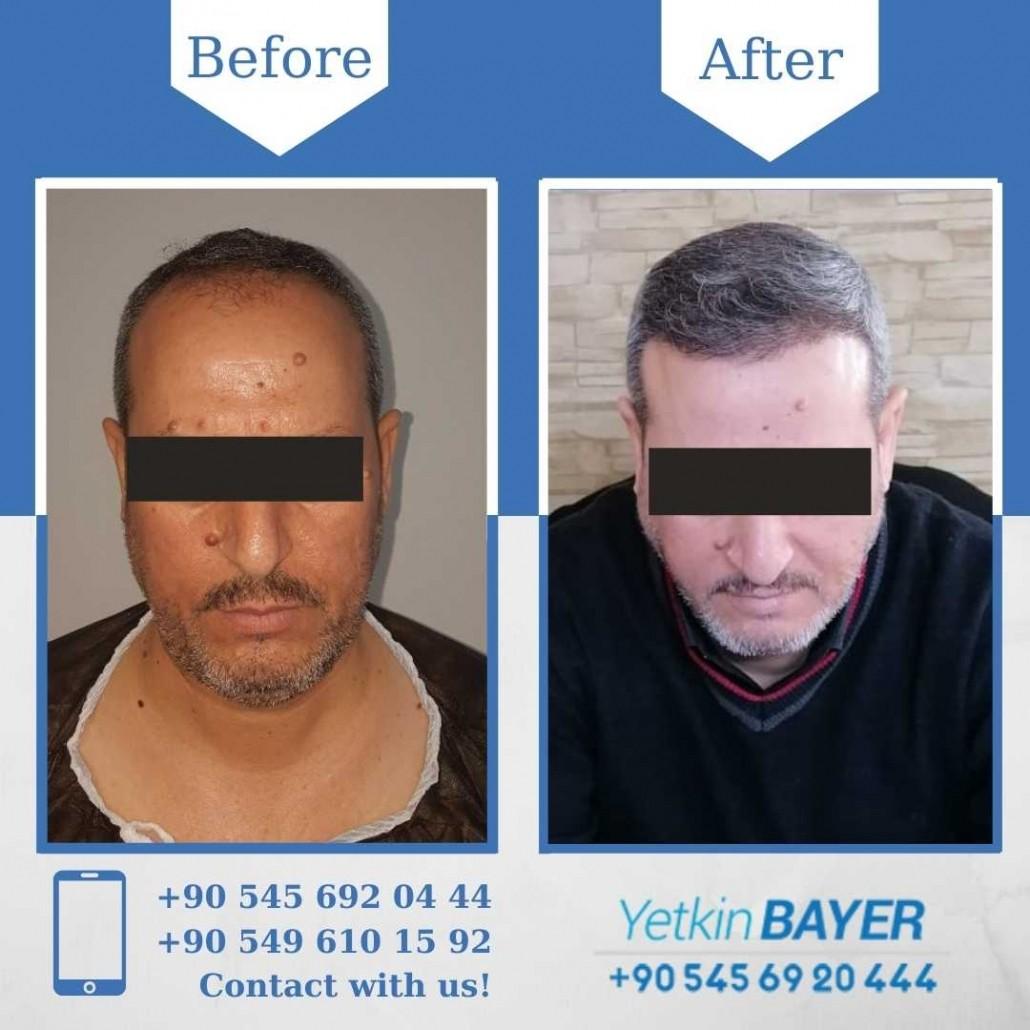 Haartransplantation in der Türkei mit der FUE-Methode 35