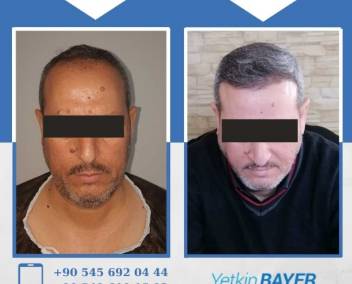 HAIR TRANSPLANT – BEFORE AND AFTER 9