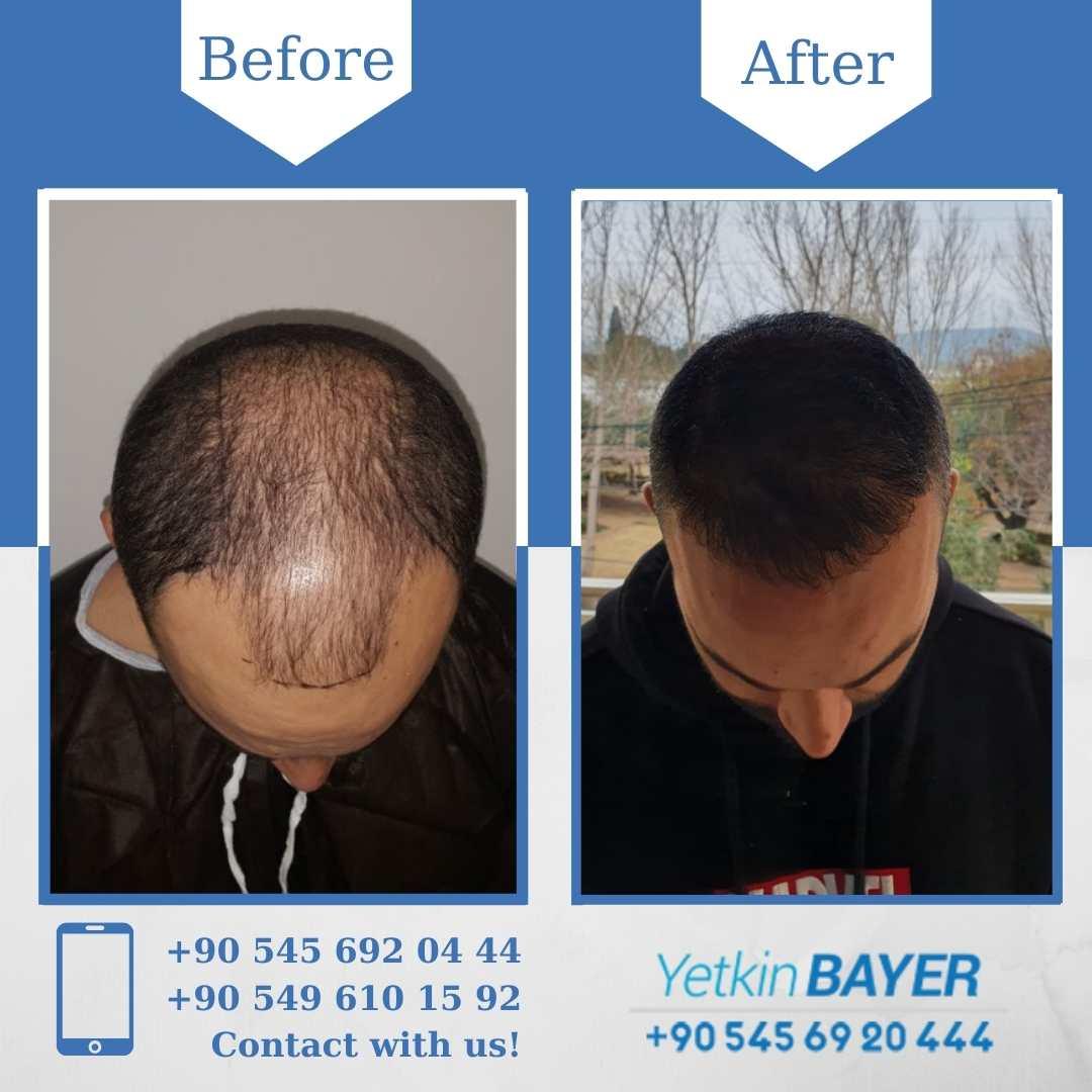 DHI Hair Transplant in Turkey 6