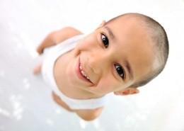 اسباب الصلع عند الاطفال