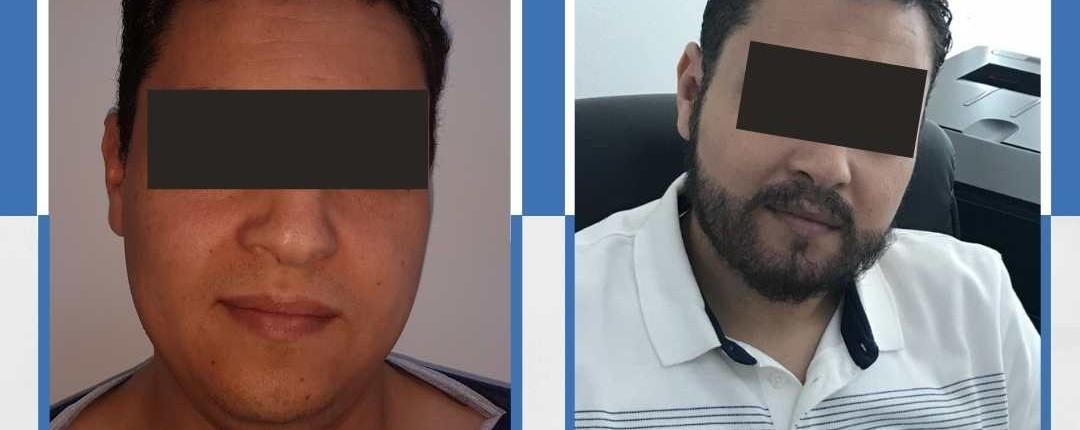 hårtransplantation turkiet resultat